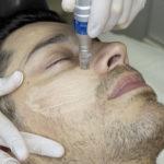 Man getting facial microneedling